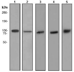 All lanes : Anti-alpha Actinin 4 antibody [EPR4410] (ab108201) at 1/1000 dilutionLane 1 : HeLa cell lysateLane 2 : MCF-7 cell lysateLane 3 : C2C12 cell lysateLane 4 : A673 cell lysateLane 5 : L6 cell lysateLysates/proteins at 10 µg per lane.