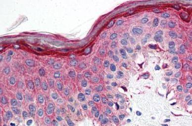 Immunohistochemical analysis of formalin-fixed, paraffin-embedded Human skin tissue labelling 5HT1E Receptor with ab140506 at 10 µg/ml.