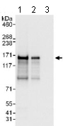 All lanes : Anti-Angiomotin antibody (ab117776) at 0.04 µg/mlLane 1 : 293T whole cell lysates at 50 µgLane 2 : 293T whole cell lysates at 15 µgLane 3 : HeLa whole cell lysates at 50 µgdeveloped using the ECL technique