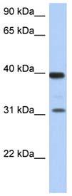Anti-67kDa Laminin Receptor antibody (ab90073) at 1 µg/ml (in 5% skim milk / PBS buffer) + Human fetal thymus lysate at 10 µgSecondaryHRP conjugated anti-Rabbit IgG at 1/50000 dilution