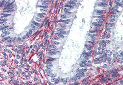 Immunohistochemical analysis of formalin-fixed, paraffin-embedded Human uterus tissue labelling Angiotensin II Type 2 Receptor with ab140704 after heat-induced antigen retrieval. After incubation with the primary antibody, slides were incubated with biotinylated secondary antibody, followed by alkaline phosphatase-streptavidin and chromogen.