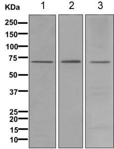 All lanes : Anti-12 Lipoxygenase antibody [ EPR11380(B)] (ab168384) at 1/1000 dilutionLane 1 : A431 lysateLane 2 : Human spleen lysateLane 3 : Human fetal liver lysateLysates/proteins at 10 µg per lane.SecondaryGoat anti-rabbit HRP at 1/2000 dilution