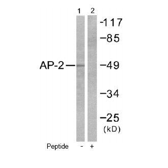 All lanes : Anti-AP2 alpha antibody - ChIP Grade (ab52222) at 1/500 dilutionLane 1 : extracts from COLO205 cells,Lane 2 : extracts from COLO205 cells, with immunizing peptide