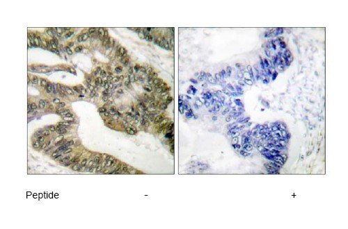 Immunohistochemical analysis of APC expression in paraffin embedded human colon carcinoma tissue using ab52223. Left: untreated section. Right: section treated with immunizing peptide.