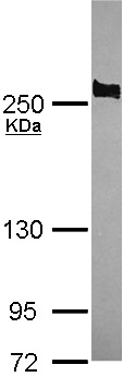 Anti-APC antibody - C-terminal (ab154906) at 1/1000 dilution + NT2D1 whole cell lysate at 30 µg