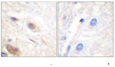 ab59421, at a 1/50 dilution, staining paraffin embedded human brain tissue sections by Immunohistochemistry in the absence (left image) or presence (right image) of the phosphopeptide.