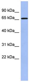 Anti-A1CF antibody (ab94598) at 1 µg/ml (in 5% skim milk / PBS buffer) + Human fetal spleen lysate at 10 µgSecondaryHRP conjugated anti-Rabbit IgG at 1/50000 dilution