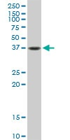 Anti-Fas antibody (ab103551) at 1/500 dilution + A431 cell lysate at 50 µg