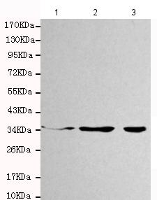 All lanes : Anti-Cyclin H antibody [4E11-G2-D7] (ab131187) at 1/1000 dilutionLane 1 : Jurkat cell lysateLane 2 : K562 cell lysateLane 3 : A431 cell lysate