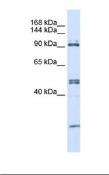 293T cell lysate. Antibody concentration: 1.0 ug/ml. Gel concentration: 6-18%.