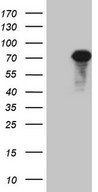 HEK293T cells were transfected with the pCMV6-ENTRY control (Left lane) or pCMV6-ENTRY ALOX12 (Right lane) cDNA for 48 hrs and lysed. Equivalent amounts of cell lysates (5 ug per lane) were separated by SDS-PAGE and immunoblotted with anti-ALOX12.