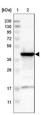 Western Blot: ACAA1 Antibody [NBP1-85786] - Lane 1: Marker  [kDa] 230, 130, 95, 72, 56, 36, 28, 17, 11.  Lane 2: Human cell line RT-13