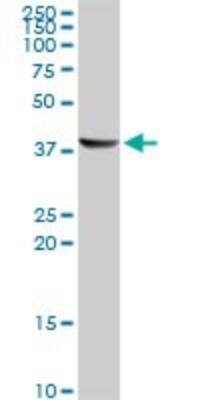 Western Blot: ACAA1 Antibody (3F11) [H00000030-M01] - ACAA1 monoclonal antibody (M01), clone 3F11. Analysis of ACAA1 expression in human liver.