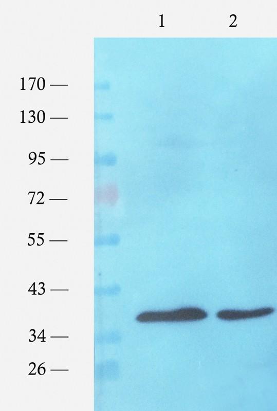 Western blot analysis of E. coli strains (lane 1), E. coli strains (lane 2) using ompC antibody (1 ug/ml)