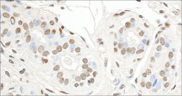 <B>Immunohistochemistry</B><BR/>Rabbit Anti-Sp1 Antibody, Affinity Purified: <B>Cat. No. PLA0044</B>: Detection of Human SP1 by Immunohistochemistry. Sample: FFPE section of Human breast carcinoma. Antibody: Affinity purified Rabbit Anti-SP1 (<B>Cat. No. PLA0044</B>) used at a dilution of 1:5,000 (0.2 μg/mL). Detection: DAB
