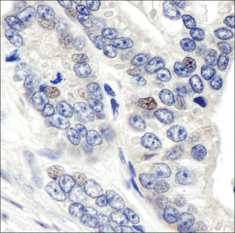 <B>Immunohistochemistry</B><BR/>Rabbit Anti-CSN1 Antibody, Affinity Purified: <B>Cat. No. PLA0008</B>: Detection of Human CSN1 by Immunohistochemistry. Sample: FFPE section of Human prostate carcinoma. Antibody: Affinity purified Rabbit Anti-CSN1 (<B>Cat. No. PLA0008</B>) used at a dilution of 1:1,000 (1 μg/mL). Detection: DAB