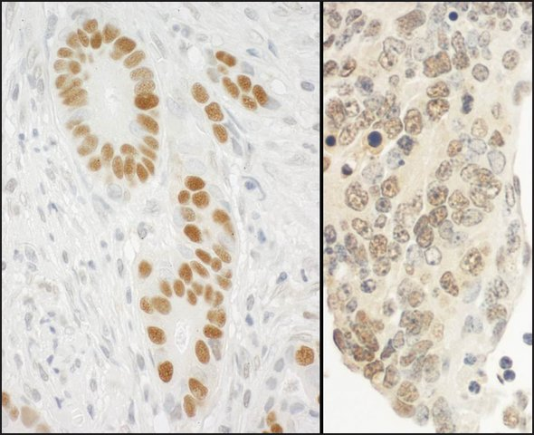 <B>Immunohistochemistry</B><BR/>Rabbit Anti-PCNA Antibody, Affinity Purified: <B>Cat. No. PLA0080</B>: Detection of Human and Mouse PCNA by Immunohistochemistry. Sample: FFPE section of Human stomach carcinoma (left) and Mouse teratoma (right). Antibody: Affinity purified Rabbit Anti-PCNA (<B>Cat. No. PLA0080</B>) used at a dilution of 1:10,000 (0.1 μg/mL). Detection: DAB