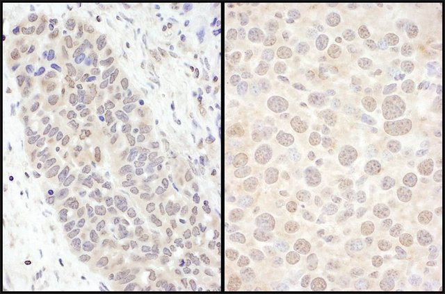 <B>Immunohistochemistry</B><BR/>Rabbit Anti-FOXO3a Antibody, Affinity Purified: <B>Cat. No. PLA0107</B>: Detection of Human and Mouse FOXO3a by Immunohistochemistry. Sample: FFPE sections of Human ovarian carcinoma (left) and Mouse renal cell carcinoma (right). Antibody: Affinity purified Rabbit Anti-FOXO3a (<B>Cat. No. PLA0107</B>) used at a dilution of 1:500 (2 μg/mL). Detection: DAB