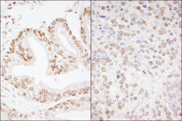 <B>Immunohistochemistry</B><BR/>Rabbit Anti-CREB Antibody, Affinity Purified: <B>Cat. No. PLA0205</B>: Detection of Human and Mouse CREB by Immunohistochemistry. Sample: FFPE section of Human prostate carcinoma (left) and Mouse teratoma (right). Antibody: Affinity purified Rabbit Anti-CREB (<B>Cat. No. PLA0205</B>) used at a dilution of 1:200 (1 μg/mL). Detection: DAB