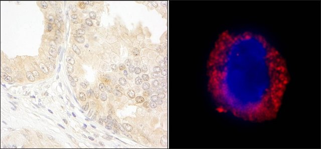 <B>Immunohistochemistry</B><BR/>Rabbit Anti-cAbl Antibody, Affinity Purified: <B>Cat. No. PLA0203</B>: Detection of Human cAbl by Immunohistochemistry and Immunocytochemistry. Sample: FFPE section of Human prostate carcinoma (left) and formaldehyde-fixed K562 cells (contains the chromosomal translocation, t(9:22) that creates the BCR/ABL fusion gene) (right). Antibody: Affinity purified Rabbit Anti-cAbl (<B>Cat. No. PLA0203</B>) used at a dilution of 1:1,000 (0.2 μg/mL) and 1:200 (1 μg/mL). Detection: DAB staining and Red-fluorescent goat Anti-Rabbit IgG cross-adsorbed Antibody used at a dilution of 1:100.