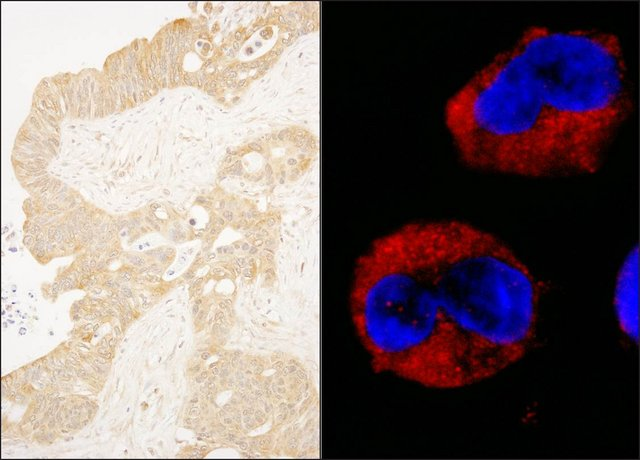 <B>Immunohistochemistry</B><BR/>Rabbit Anti-cAbl Antibody, Affinity Purified: <B>Cat. No. PLA0204</B>: Detection of Human cAbl by Immunohistochemistry and Immunocytochemistry. Sample: FFPE section of Human ovarian carcinoma (left) and formaldehyde-fixed K562 cells (contains the chromosomal translocation, t(9:22) that creates the BCR/ABL fusion gene) (right). Antibody: Affinity purified Rabbit Anti-cAbl (<B>Cat. No. PLA0204</B>) used at a dilution of 1:1,000 (1 μg/mL). Detection: DAB staining and Red-fluorescent goat Anti-Rabbit IgG cross-adsorbed Antibody used at a dilution of 1:100.