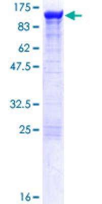 Recombinant Human Alpha Actinin 4 Protein [H00000081-P01] - 12.5% SDS-PAGE Stained with Coomassie Blue.