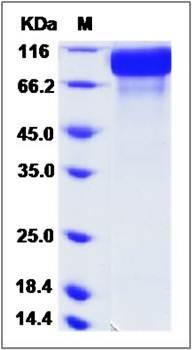 SDS-PAGE analysis of Cynomolgus ERBB2 (His Tag) protein