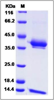 SDS-PAGE analysis of Cynomolgus CD1E (His Tag) protein