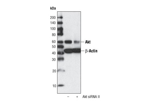 Western blot analysis of extracts from HeLa cells, transfected with 100 nM SignalSilence ® Control siRNA (Fluorescein Conjugate) #6201 (-) or SignalSilence ® Akt siRNA II (+), using Akt (pan) (11E7) Rabbit mAb #4685 and β-Actin (13E5) Rabbit mAb #4970. Akt (pan) (11E7) Rabbit mAb confirms silencing of Akt expression, while β-Actin (13E5) Rabbit mAb is used to control for loading and specificity of Akt siRNA.