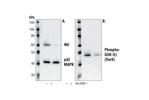 Western blot analysis of extracts from CHO cells, transfected with non-targeted (-) or SignalSilence ® Akt siRNA I (+) siRNA, using Akt Antibody #9272 and p42 MAP Kinase (Erk2) Antibody #9108. The Akt antibody confirms silencing of protein expression while the p42 MAP Kinase (Erk2) antibody was used to control for loading and specificity of Akt siRNA (A). Phospho-GSK-3β (Ser9) Antibody #9336 was used to confirm downstream pathway inhibition (B).