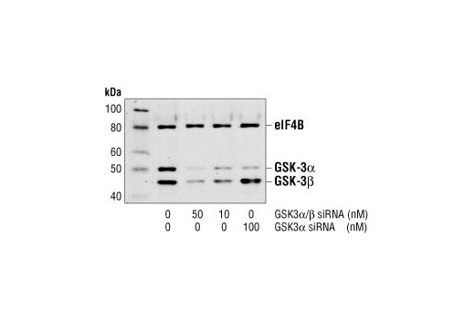 Western blot analysis of extracts from HeLa cells, untransfected or transfected with either GSK-3alpha/beta siRNA #6301 or GSK-3alpha siRNA. GSK-3alpha and GSK-3beta were detected using a GSK-3alpha/beta antibody, and eIF4B was detected using eIF4B Antibody #3592. The GSK-3alpha/beta antibody confirms silencing of GSK-3alpha and beta expression, and the eIF4B Antibody is used to control for loading and siRNA specificity.